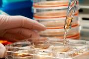 Експериментират със стволови клетки за лечение на диабет