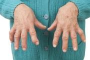 Поредни промени за диспансеризация на лица с ревматоидни заболявания разпореди НЗОК