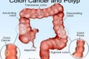 3100 души у нас се разболяват годишно от рак на дебелото черво