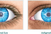Астигматизмът - един от най-честите проблеми със зрението