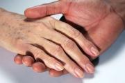 Тъмната кожа по ръцете издава недостиг на витамин В12