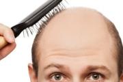 Лечението на косопада е в зависимост от интензитета