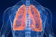 Всяка година у нас 4200 души заболяват от рак на белите дробове