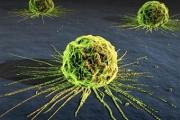 За 20 г. в САЩ рискът от рак е намалял с 20%