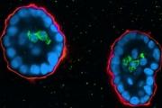 """""""Хакват"""" мобилна игра за изследване на рак"""