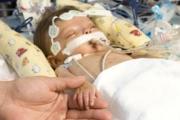 По-ефективно финансиране за деца с вродени сърдечни малформации искат лекари