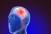 Лекарство за диабет помага за възстановяване на мозъка при травма и инсулт