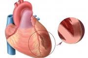 Креатинкиназата е добър показател за състоянието на сърдечния мускул