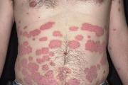 Шест случая на лаймска болест в Старозагорско