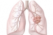 Стартираха проект за 14 млн. фунта за рака на белите дробове