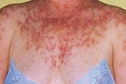Жените по-често страдат от лупус еритематозус