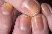 Ноктите - разузнавачи за куп болести