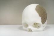 Присадиха принтиран триизмерен череп
