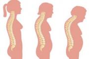 Как да се предпазим от остеопороза