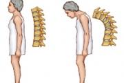 426 000 жени в България страдат от остеопороза