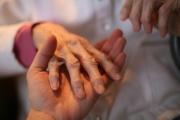 Ревматици искат 100% реимбурсиране на лечението