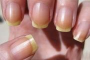 Жълтите нокти предупреждават