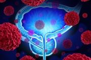 Все повече мъже са диагностицирани в късния стадий на рак на простатата