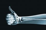На 8 ноември отбелязваме Световния ден на радиологията