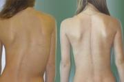 Половината ни първолаци с гръбначни изкривявания