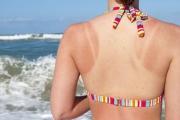 Слънчевото изгаряне е по-опасно за тийнейджърите