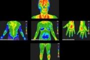 Прегледи чрез термовизуална диагностика се провеждат в Стара Загора