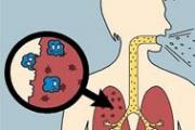 Расте броят на заболелите от туберкулоза
