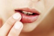 Домашна рецепта за напукани устни