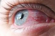 Вирусният конюнктивит е едно от типичните летни заболявания
