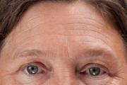 И бръчките по челото понякога издават здравословни проблеми