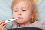 Над 60000 души са боледували от варицела през последните 2 години