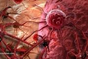 Нова терапия с обещаващи резултати при лечение на напреднал бъбречно-клетъчен карцином