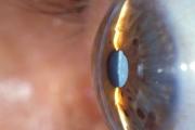 Кампания срещу катаракта на 14 октомври в Стара Загора