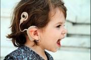 Деца със загуба на слуха чакат с месеци за речеви процесор