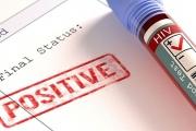 Нараства броят на регистрираните случаи на ХИВ у нас