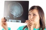Инсултът дава по-нетипични симптоми при жените