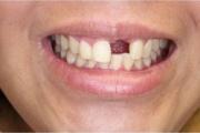 Всеки загубен зъб понижава мозъчната дейност