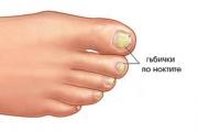 Всеки 8 от 100 страдат от гъбички по ноктите