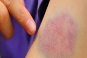 Кога синините са симптом на тежки заболявания