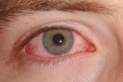 Разстроената имунна система може да възпали очите