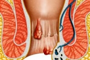 Променете начина на живот и изгонете хемороидите
