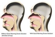 Хъркането е симптом за здравословни проблеми