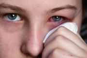 Вирусният конюнктивит - едно често срещано лятно заболяване