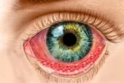 Хламидията предизвиква и трахома